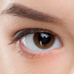 Cắt mí Xuân Trường – Giải pháp cho đôi mắt trẻ đẹp