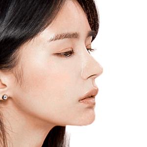 Nâng mũi bọc sụn – Đột phá mới cho dáng mũi hoàn hảo