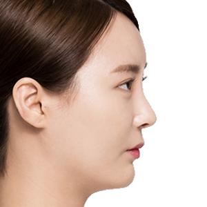 Thu gọn đầu mũi – Tạo đầu mũi cân xứng tự nhiên