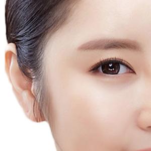 Căng da thái dương –  Cho làn da đẹp mịn màng cuốn hút