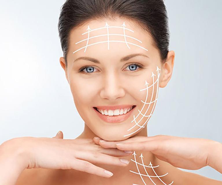 Căng da mặt bằng chỉ là gì? Các loại chỉ căng da an toàn nhất